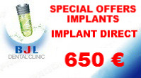 special-offers-implants